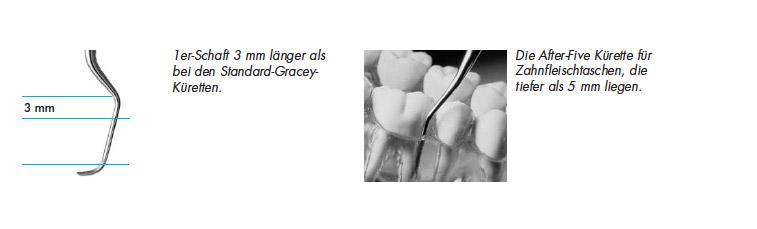 Gracey-Küretten für spezifische Bereiche bzw. ZahnoberflächenGracey-Küretten für spezifische Bereiche bzw. ZahnoberflächenGracey-Küretten für spezifische Bereiche bzw. ZahnoberflächenGracey-Küretten für spezifische Bereiche bzw. Zahnoberflächen